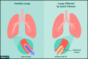 Diagram - healthy lungs with clear airways. Lungs affected by Cystic Fibrosis with thickened mucus lining airways