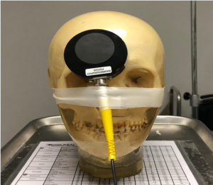 Ionization chamber placed over phantom skull at an angle, covering the temple