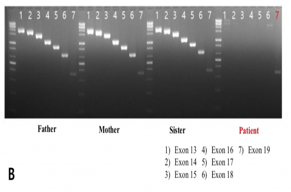 PCR for father, mother, sister, and patient