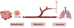 The process of Metastasis. From left to right, the images are a tumor of cancer cells, a single cancer cell tumor breaking off and entering the blood stream, and small circulating tumor cells that enter the bone and lungs.