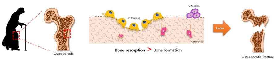 Diagram, osteoporosis, Bone Reabsorption > Bone formation later Osteoporatic fracture