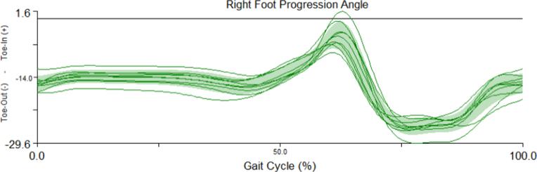 Right Foot Progression Angle