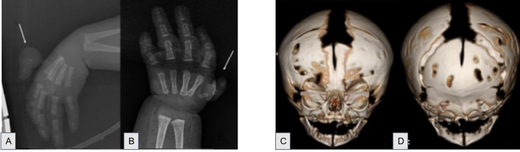 x-ray of hands and CT of skull, photo